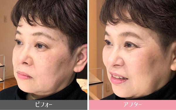 眉毛ビフォーアフター/美キャリアラボ平井聡子